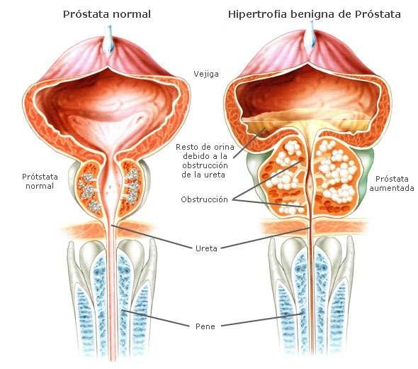tamaño de la próstata 30 años